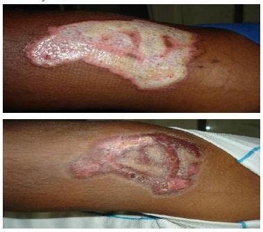 cicatriz dermoabrasion.jpg